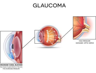Glaucoma - symptoms